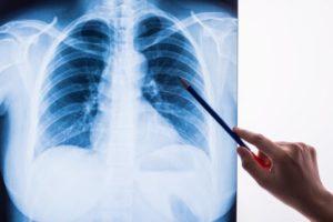 肺のレントゲン写真